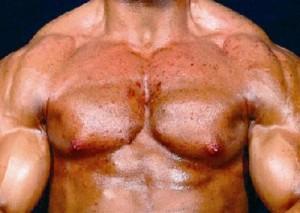 anabolizante 300x213 Suplementos alimentares podem causar acne?